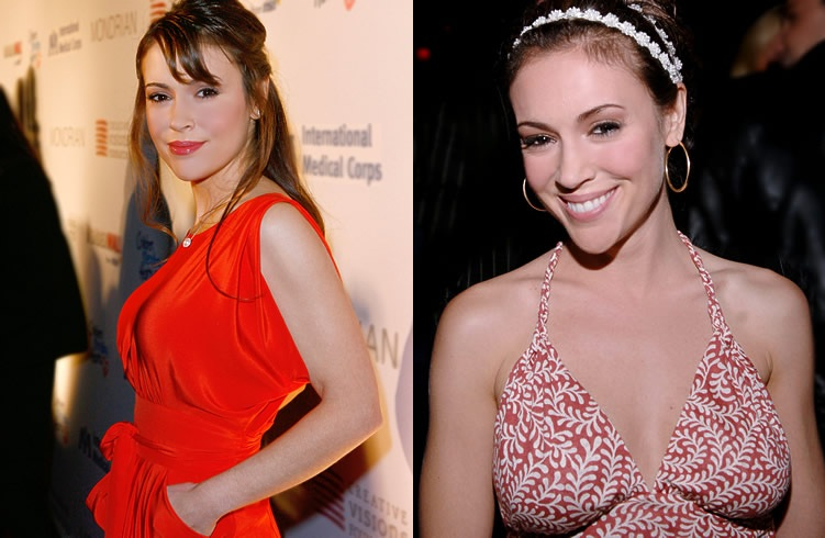 Alyssa Milano Breast Implants Before And After Plastic Surgery2