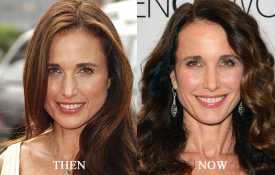 andie macdowell plastic surgery before and after 2018