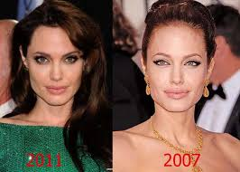 Angelina Jolie Face Plastic Surgery Before and After Nose Job