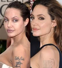 Teenager Angelina Jolie Surgery >> Angelina Jolie Face Plastic Surgery Before and After Nose Job | 2018 Plastic Surgery before and ...