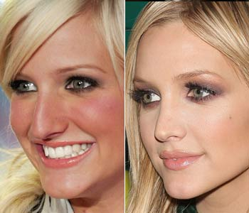 Ashlee Simpson Plastic Surgery Before And After Nose Job