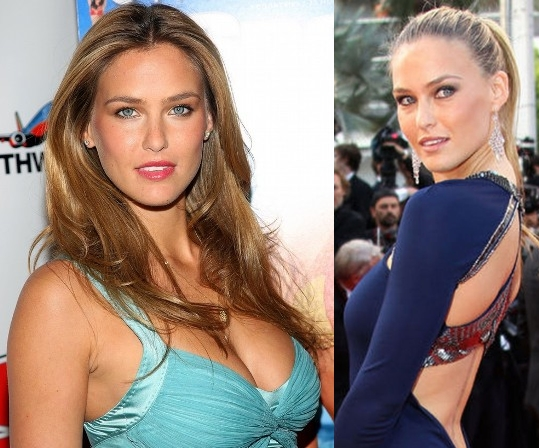 Bar Refaeli Plastic Surgery Before and After Boobs Job