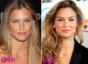 Bar Refaeli Plastic Surgery Before and After Pictures