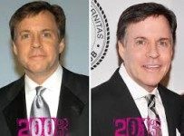 Bob Costas Plastic Surgery Before And After Photos1