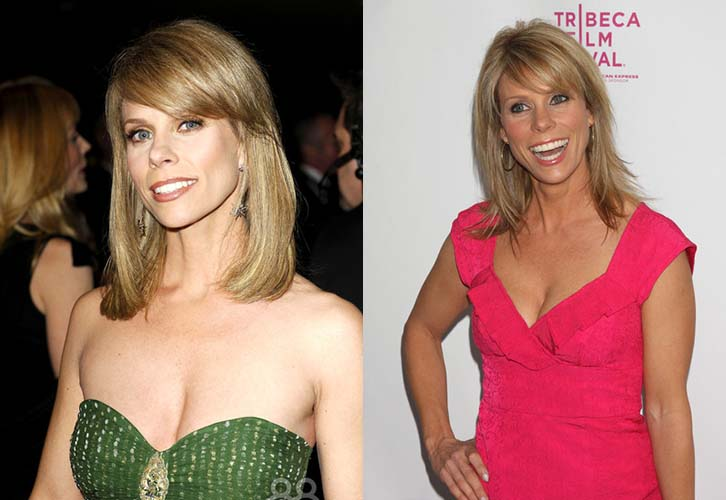 Cheryl Hines Plastic Surgery Before And After Pictures1