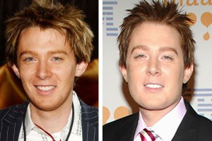 Clay Aiken Jaw Plastic Surgery Before and After Photos