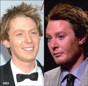 Clay Aiken Jaw Plastic Surgery Before and After Photos1