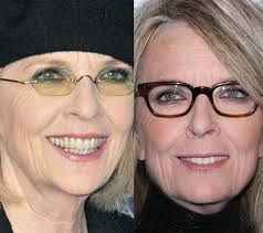 Diane Keaton Nose Job and Skin Plastic Surgery Before and After Photos 2