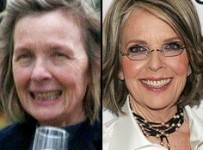 Diane Keaton Nose Job and Skin Plastic Surgery Before and After Photos