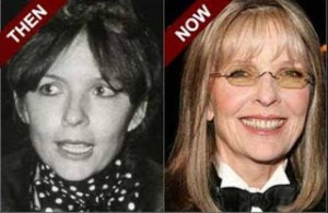 Diane Keaton Nose Job and Skin Plastic Surgery Before and After Photos1