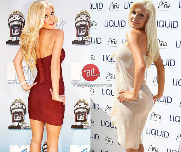 Heidi Montag Before and After Plastic Surgery3