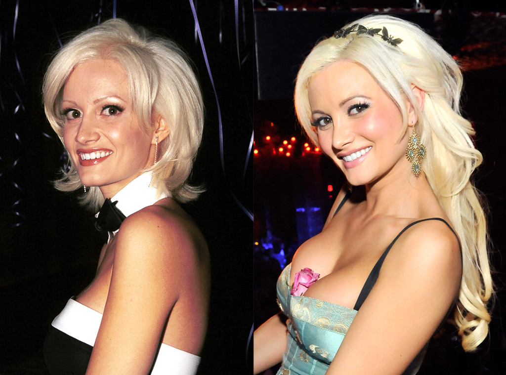 Holly Madison Plastic Surgery Before and After Look Photos