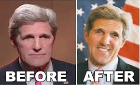 John Kerry Hip Plastic Surgery Before and After Pictures1