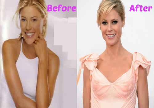 Julie Bowen Fraxel Cosmetic Surgery Before and After Nose Job