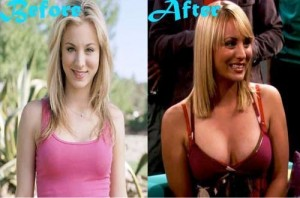 Kaley Cuoco Breast Implant Nose Job Plastic Surgery Before And After Photos