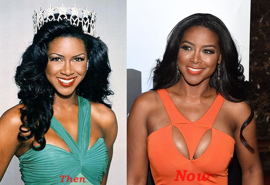 Kenya Moore Plastic Surgery Before And After Pictures Breasts