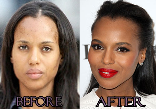 Kerry Washington Plastic Surgery Before And After pictures