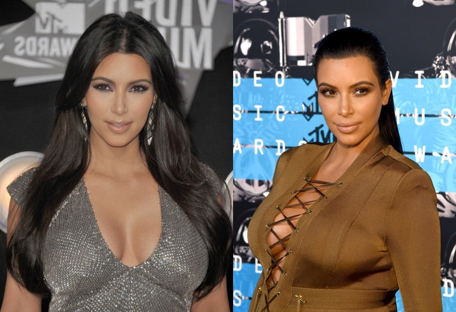 Kim Kardashian Breast Implants Before And After Pictures