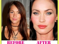 Megan Fox Plastic Surgery Before And After Photos1