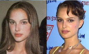 Natalie Portman Plastic Surgery Before and After1