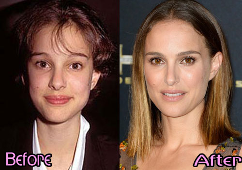 Natalie Portman Plastic Surgery Before and After2