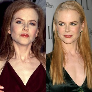 Nicole Kidman Before and After Plastic Surgery Pictures