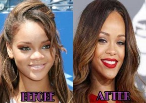 Rihanna Nose Job Plastic Surgery Before And After Pictures
