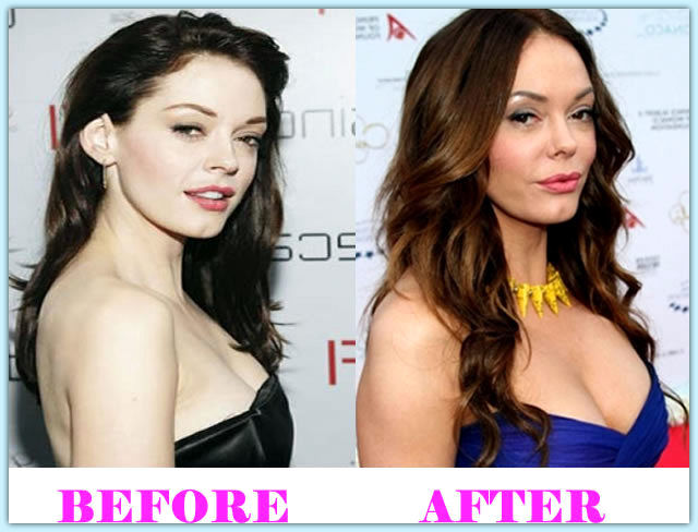 Rose McGowan Plastic Surgery Before and After Pictures3
