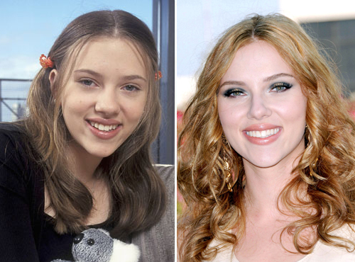 Scarlett Johansson Plastic Surgery Before and After