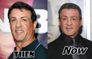 Sylvester Stallone Plastic Surgery Before and After Pictures Expendables