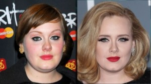 Adele Nose Job Before And After Plastic Surgery Pictures