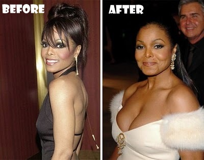 janet jackson plastic surgery before and after pictures