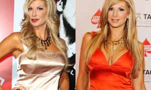 Alexis Bellino plastic surgery Before and After Photos