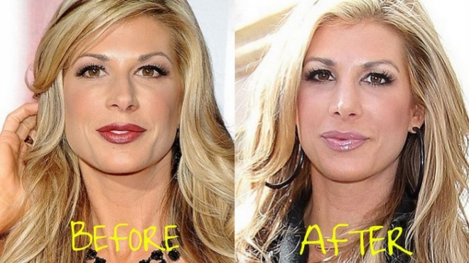 Alexis Bellino plastic surgery Before and After Photos3
