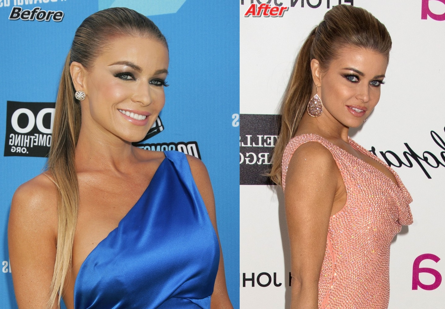 Carmen Electra Breast Implants Before And After Photos1