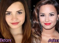 Demi Lovato Nose Job Before and After Plastic Surgery Photos1
