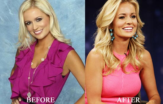 Emily Maynard Nose Job Plastic Surgery Before and After Photos