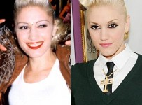 Gwen Stefani Nose job plastic surgery before and after photos