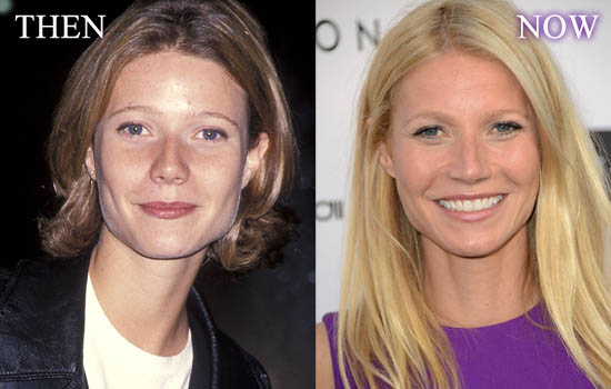 Gwyneth Paltrow Nose Job Before And After Pictures