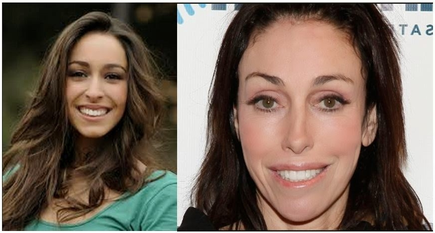 Heidi Fleiss Lip Job Plastic Surgery Before And After Photos 2