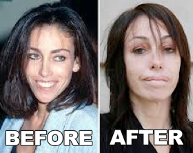 Heidi Fleiss Lip Job Plastic Surgery Before And After Photos