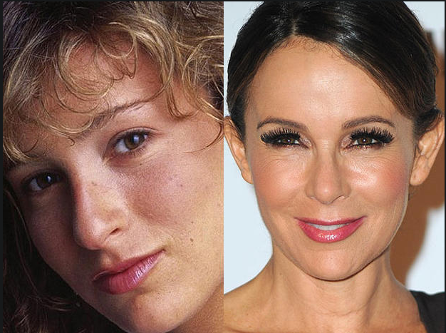 Jennifer Grey Then And Now After Plastic Surgery Photos