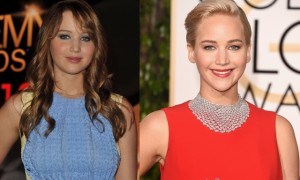 Jennifer Lawrence Plastic Surgery Before And After Face