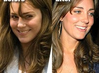 Kate Middleton Nose Job Before And After Plastic Surgery Photos1