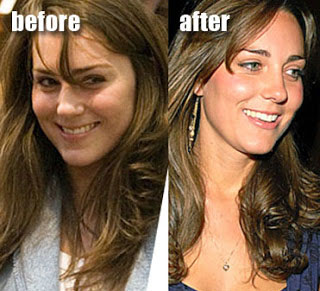 kate middleton nose job before and after plastic surgery