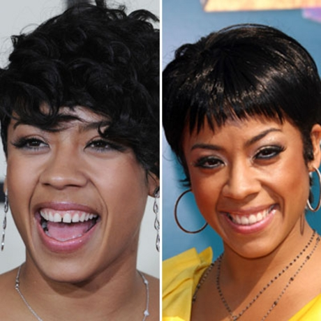 Keyshia Cole Before And After Plastic Surgery Photos 1