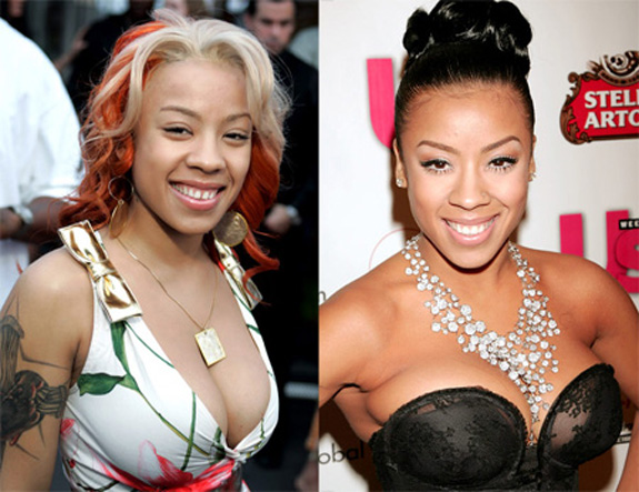 Keyshia Cole Before And After Plastic Surgery Photos