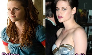Kristen Stewart Plastic Surgery Before And After Photos