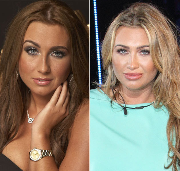 Lauren Goodger Plastic Surgery Before And After Photos