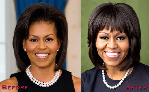 Michelle Obama plastic surgery before and after 1
